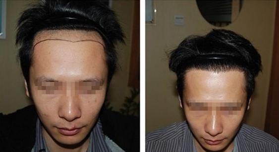 武汉新生植发2600单位案例,植发手术前后对比