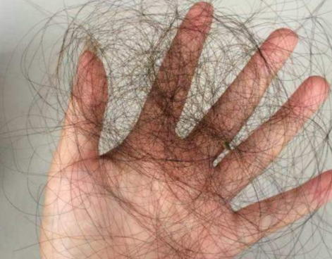 什么是植发?植发手术后头发还会掉吗?