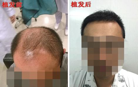 头顶植发多少钱?杨先生五级脱发植发真实案例
