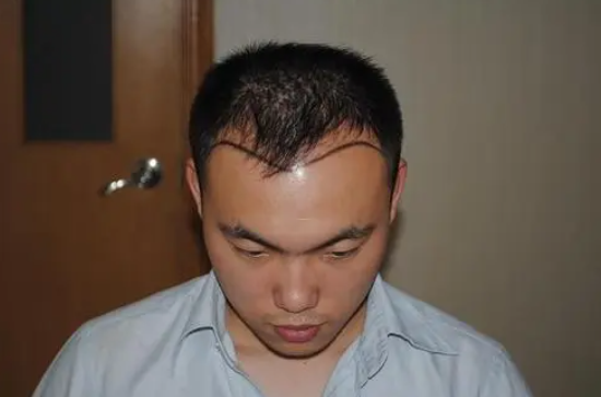 什么原因导致脱发的呢?掉头发可以植发吗?