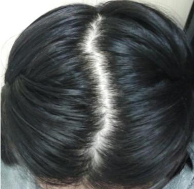 """怎么把头顶发缝变""""窄""""?发缝为什么会变""""宽""""?"""