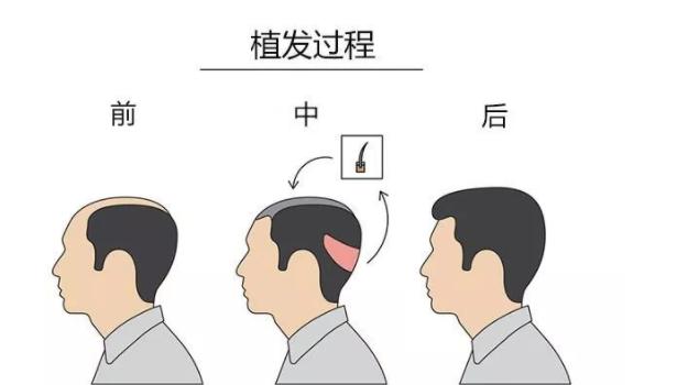 植发效果自然吗?植发后多久恢复?