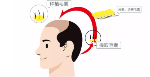 FUT和FUE植发有什么区别?哪种技术更加先进?