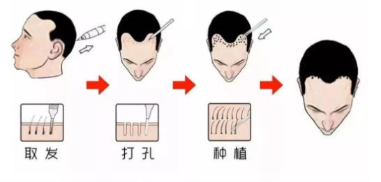 植发的好处都有哪些?毛发种植注意事项