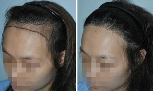 植发前需要注意到哪些问题,植发真的不会掉吗?
