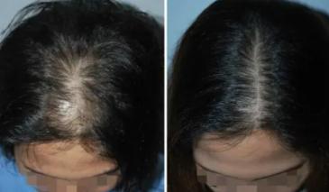 植发术后会留下疤痕吗?植发有没有危害?