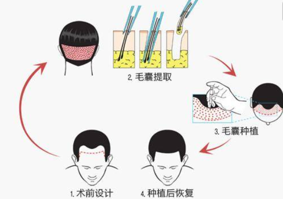 植发能保持多久?植发一般是怎么收费的?
