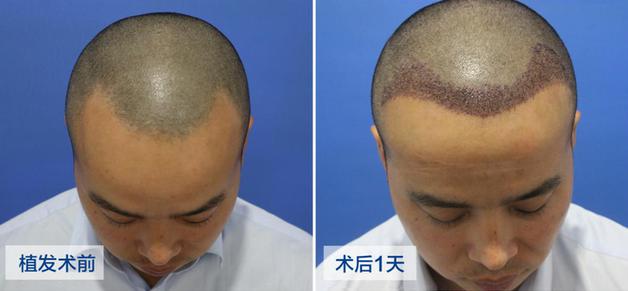 头发太少可以植发吗?术后效果好不好?