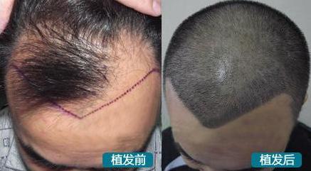 植发和种发区别在哪里?术后能不能自然生长?