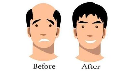 植发百科:每个人都理解的1个毛囊=1根头发?毛囊误区!