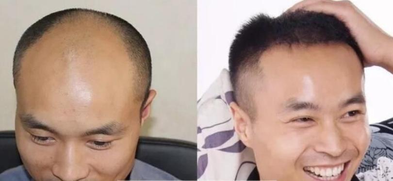 杭州植发好不好?李先生天津新生植发4000单位分享案例经验
